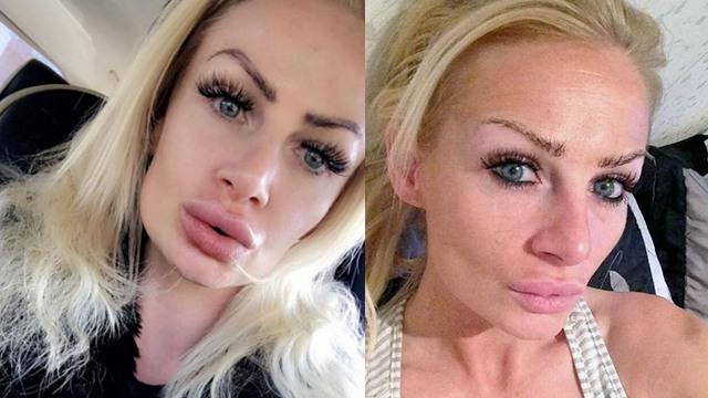 整容有风险!英女子丰唇失败两年后方恢复正常