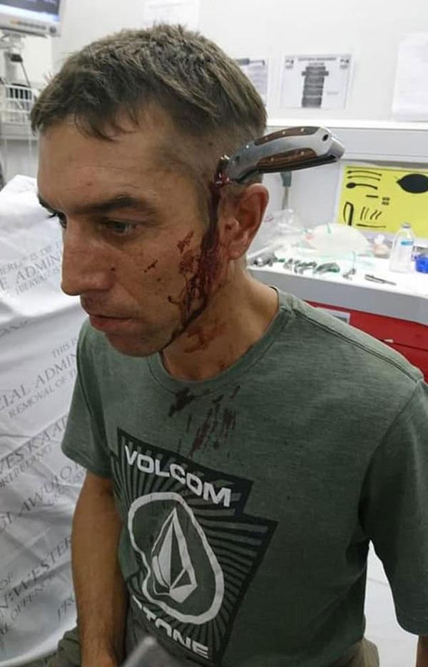 真淡定!南非一男子头部插刀孤身骑车冷静赴医