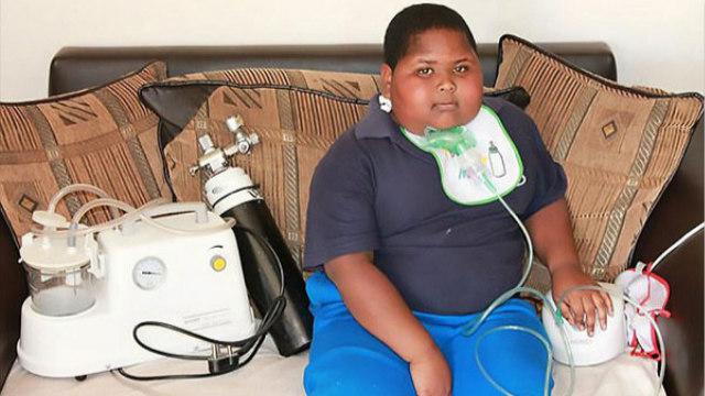 南非11岁男童患肥胖症去世 饿了连卫生纸都吃