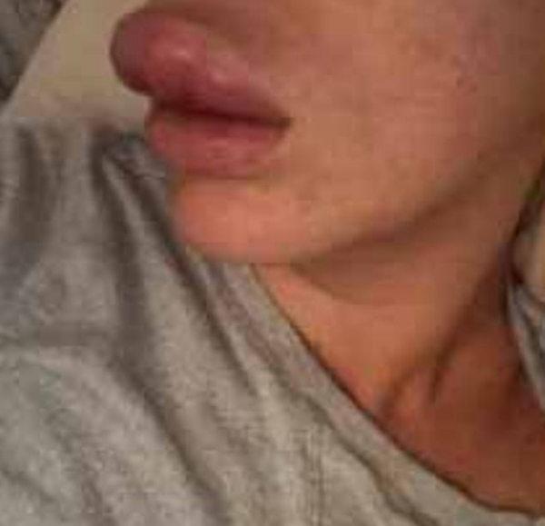 英女子误信美容师致丰唇失败险失上唇