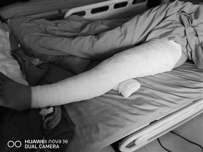 17岁女儿全身烧伤 父亲割皮救她谎称在外打工