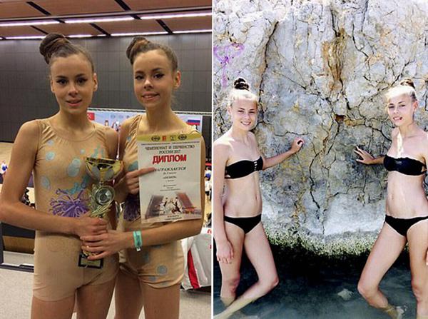 俄14岁孪生姐妹患厌食症身体枯瘦如柴