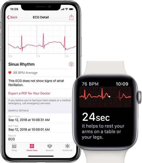watchOS 5.1.2今日发布 加入ECG心电图支持