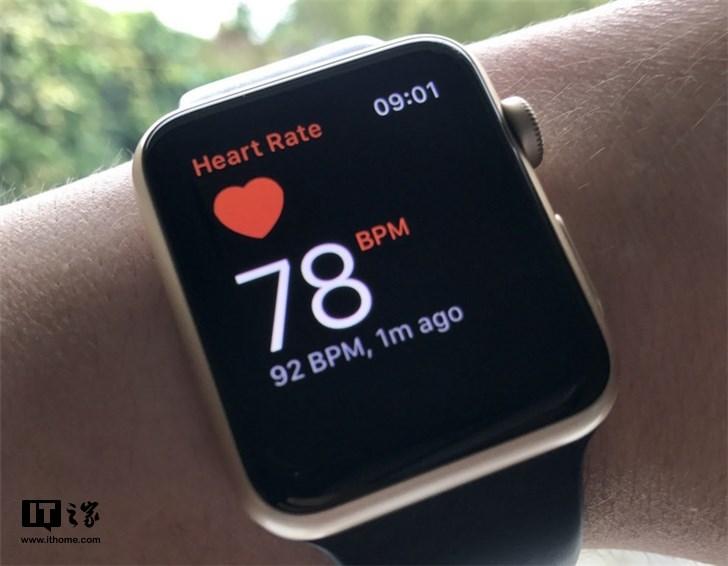 用户苹果手表ECG 心电图功能发现房颤 医生确诊