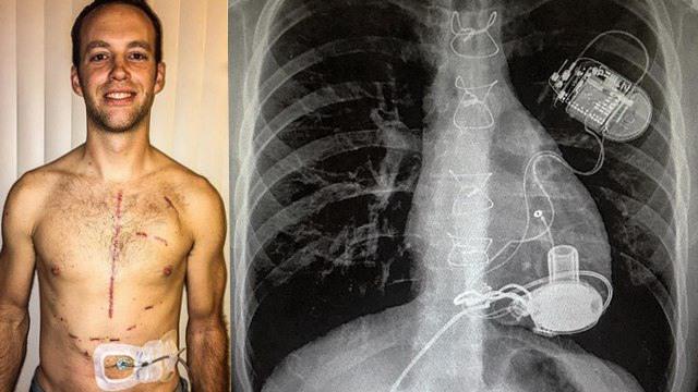 美国肌肉男依赖机械心脏维持生命 每晚需要充电