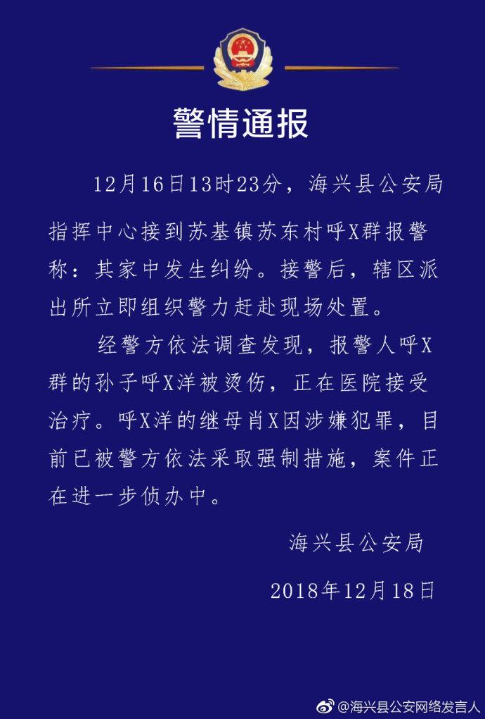 海兴县一男童被烫伤 嫌疑人系其继母