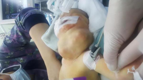 """新生儿颈部挂另一个""""脑袋""""呼吸困难,实为巨大肿瘤来沪切除"""