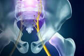 跑者遭遇坐骨神经痛 或梨状肌综合征所致