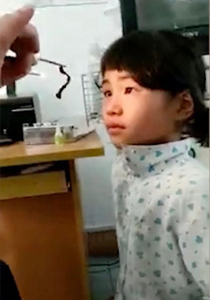 越南小女孩鼻子藏异物近1月 医生取出7.6厘米虫子