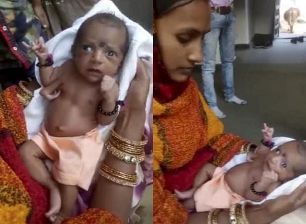 """印度一长了""""三只手""""的女婴被奉为神灵"""