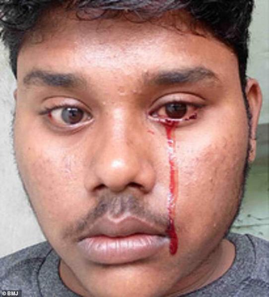 印度一男子流血泪看医未果 各项检查显示正常