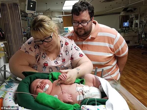 美得州一新生巨婴重达13.4斤 惊呆医生