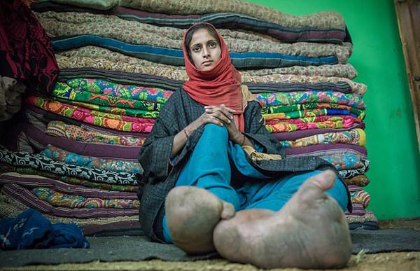 印度一女孩因患病脚丫异常肿胀从未穿鞋