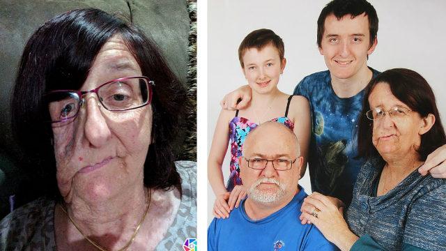 新西兰面部畸形女子饱受折磨数十年终释怀