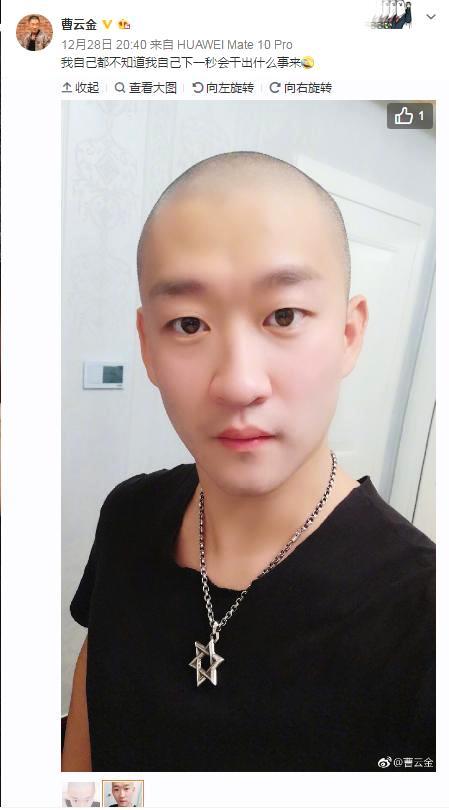 曹云金自爆自己抑郁了,微博晒出自己光头造型,尽显疲惫!