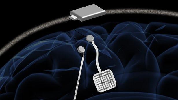 """无线""""大脑起搏器""""可自动检测和预防癫痫发作"""