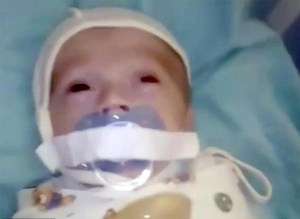 俄医院12周大婴儿遭胶带强行固定奶嘴叫人心疼