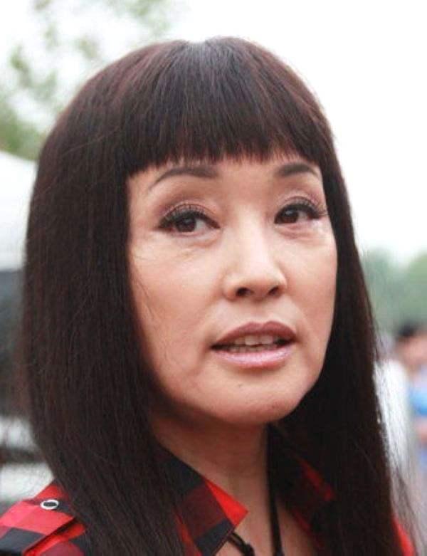 被玻尿酸毁了整张脸的明星,李小璐上榜,最后一位面目全非