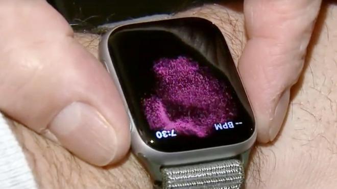 AppleWatchSeries4的心电图功能挽救佩戴者生命