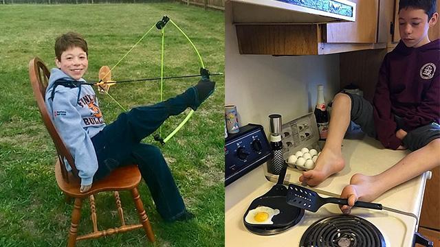 励志!美14岁男孩克服身体障碍用脚完成日常工作