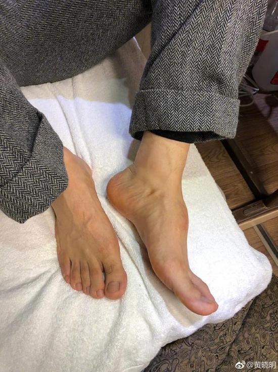 黄晓明晒脚背照回应鞋垫质疑:事故后组织增生