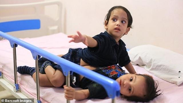 印度连体兄弟分离成功 如正常孩子奔跑和玩耍