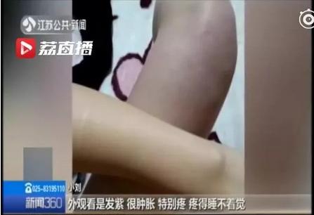 21岁女生连续5天不下床 一看双腿吓坏了