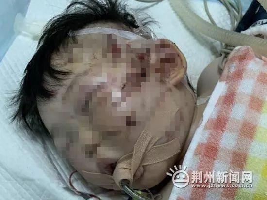 心痛!湖北一女婴被烈性犬咬伤面部,脸缝上百针