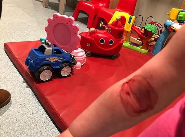 惊险一刻!英女孩手臂被狗咬着欲拖出安全门