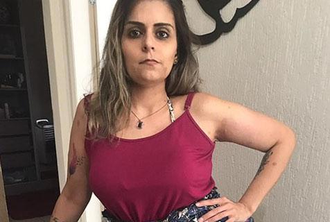 巴西女子患神经纤维瘤 已做7次手术仍有双大象腿