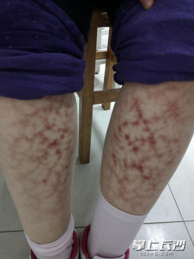 春节期间女子双腿长满网状红斑 竟与这个习惯有关