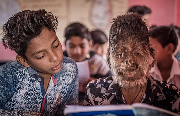 现实版狼人!印13岁男孩因患罕见病满脸覆盖长毛
