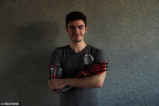 西班牙残疾少年用乐高玩具自造机械假肢