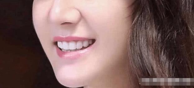 一共5张嘴唇,你能分辨出哪个是赵丽颖的?看图片还真的不好辨!