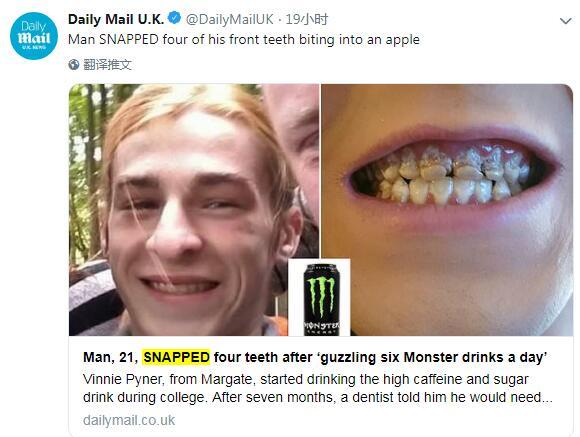 为集中精力编程猛灌功能饮料,一大学生4颗门牙全断