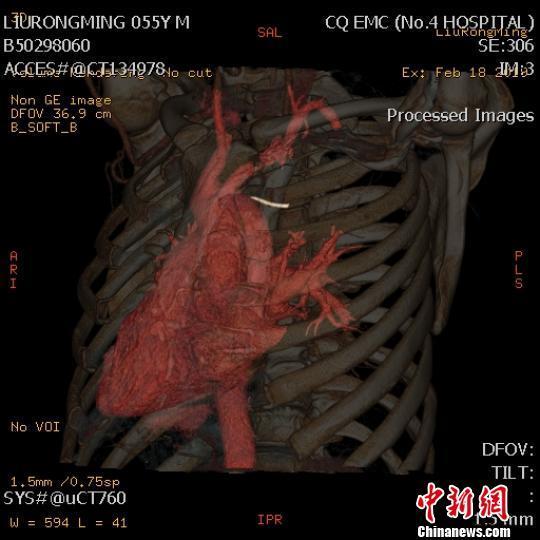"""""""     术前,孔令文组织科室医生结合ct仔细辨别刘某的胸腔结构,以避免"""