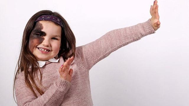 英女孩半边脸长大块黑胎记 自信多才成慈善机构代言人