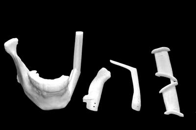 因病换下颌骨 新下巴3D打印
