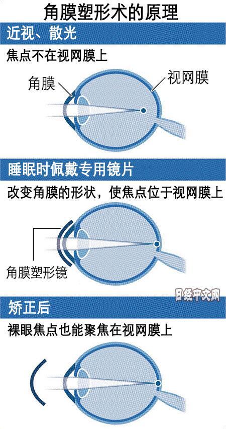 """在睡梦中就能治疗近视?日本""""角膜塑形术""""正受到关注"""