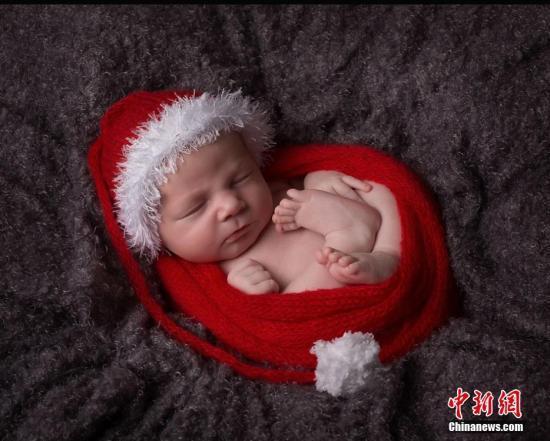 美国女子九分钟连生六胞胎 发生率仅为四十七亿分之一