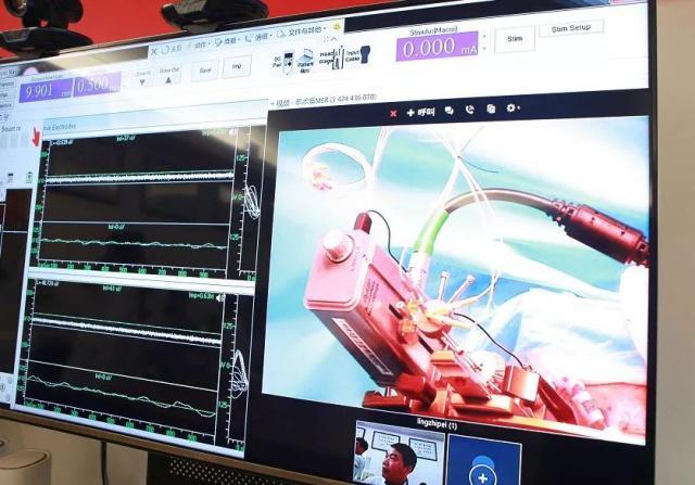 外媒:中国医生主刀首例5G远程脑外科手术