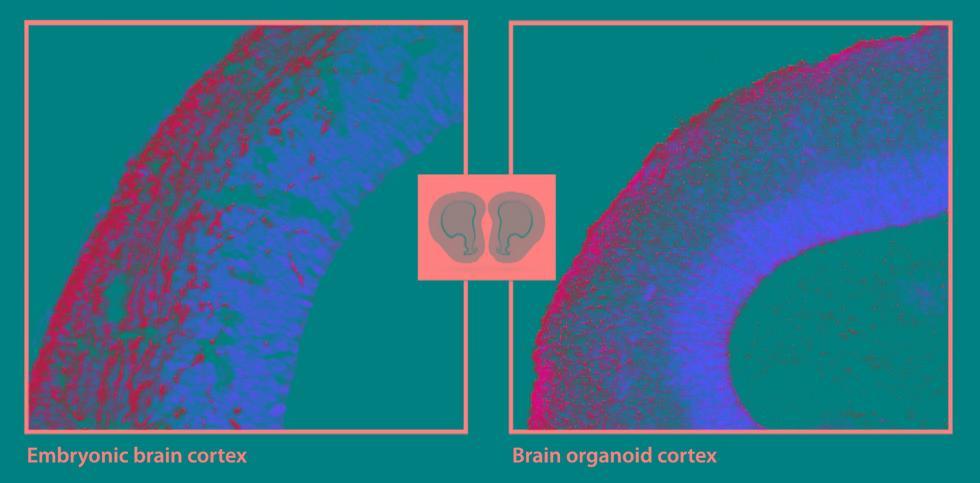"""科学家研究""""迷你""""大脑器官 可控制肌肉组织收缩"""
