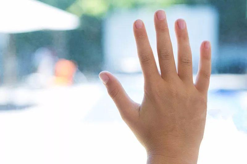 12岁少年双手突然变青紫,医院也查不出病因!结局...网友笑哭了