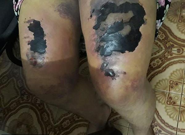 巴西女子被丈夫在黑魔法仪式上殴打大腿坏死