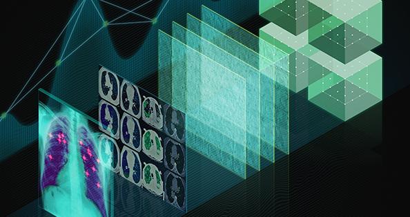 英伟达将向放射科医生提供免费的AI工具