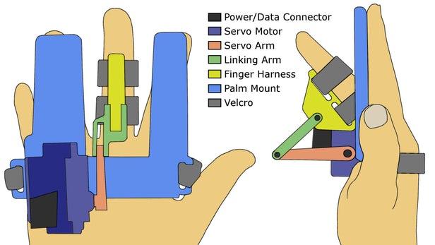 电动手指弯曲器将能为帕金森病早期诊断提供帮助