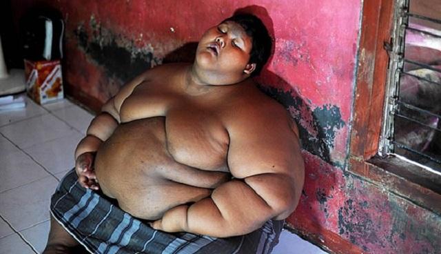 """""""世界最胖男孩""""体重减半后皮肤松弛盼切除"""