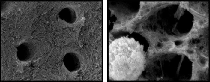 研究发现免疫细胞或加重蛀牙损害