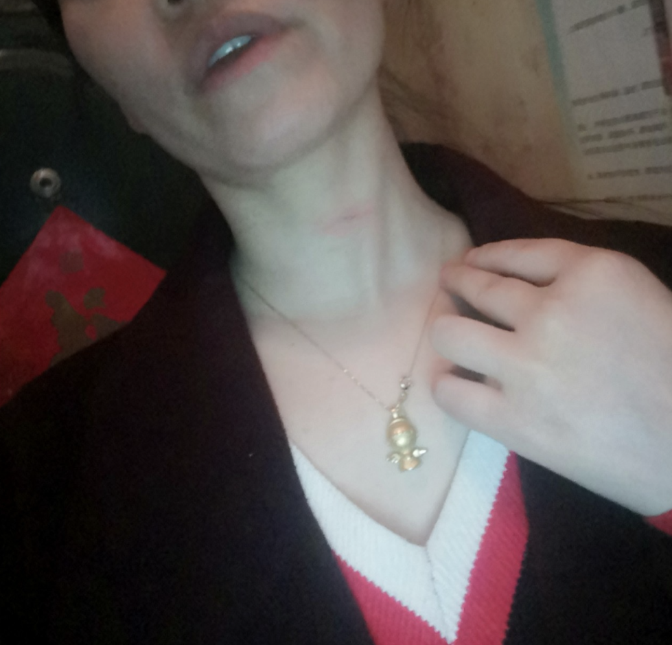 """风筝线成""""凶器"""" 女游客夜逛广场被割伤颈部"""