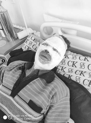 61岁丈夫冲进火场抱出瘫痪妻子 自己面部全部烧伤妻子安然无恙